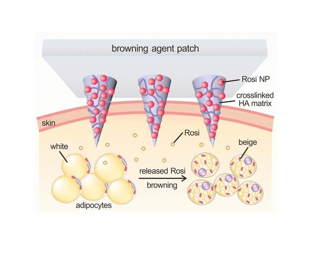 Un parche para piel recubierto de nanopartículas podría tratar la obesidad y la diabetes