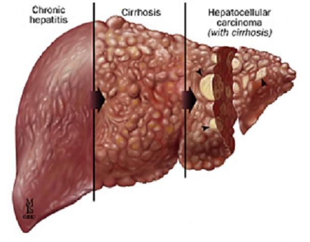 Experimento consigue evitar un cáncer de hígado en ratas con una molécula presente en cítricos