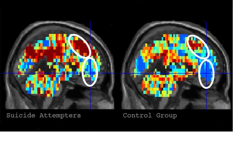 Inteligencia artificial detecta tendencias suicidas mediante escáneres cerebrales