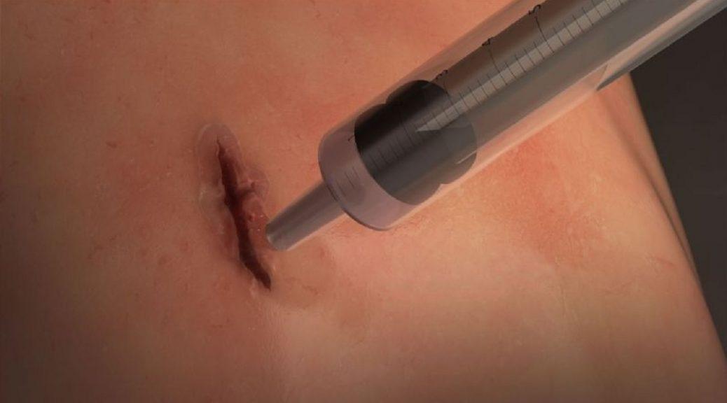 Crean pegamento elástico que sella heridas en 60 segundos