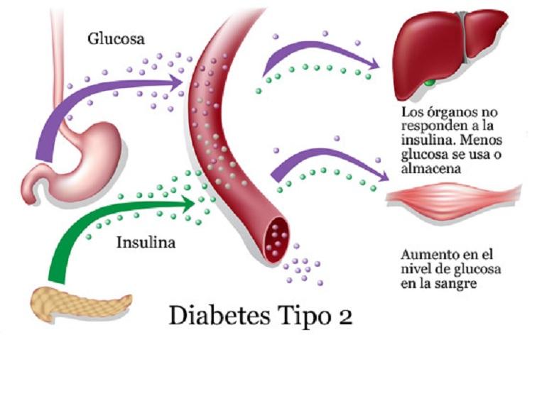 La diabetes tipo 2 es reversible - PDM Productos Digitales