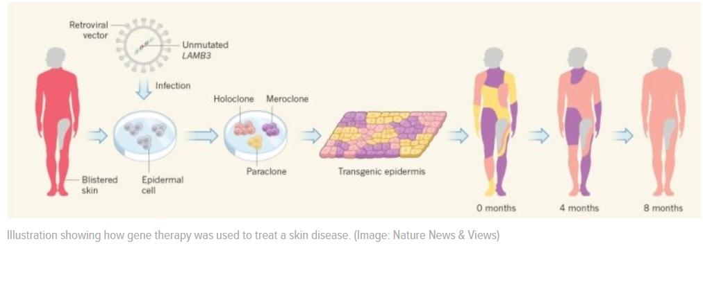 Terapia génica hace crecer piel nueva a un niño de siete años