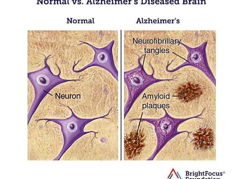 Reducen el daño cerebral del alzhéimer con un nuevo compuesto