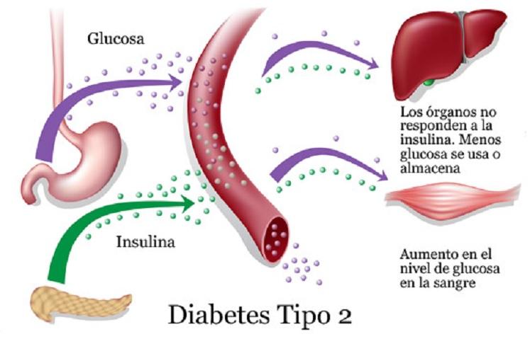 diabetes tipo 1 causada por una dieta pobre y diabetes