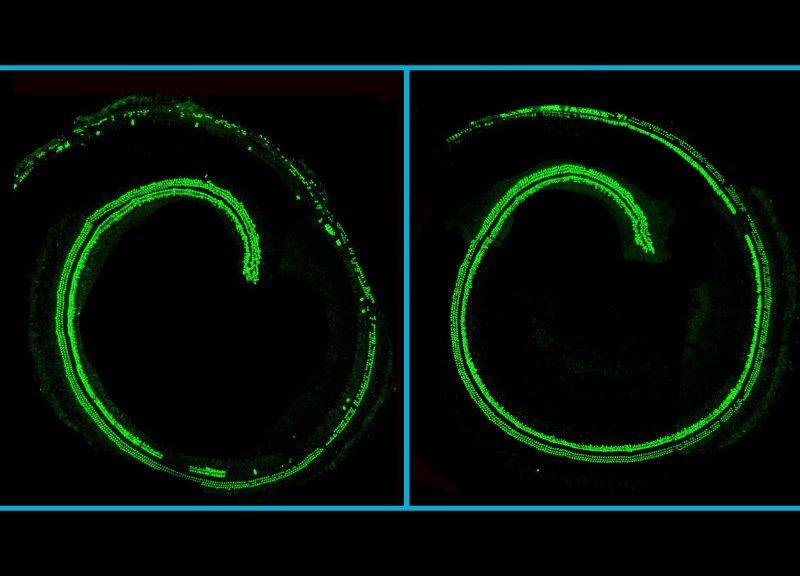 Atacando la sordera congénita: CRISPR consigue frenar la degeneración del oído en ratones vivos