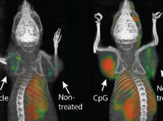 Una 'vacuna' para el cáncer logra eliminar tumores en ratones