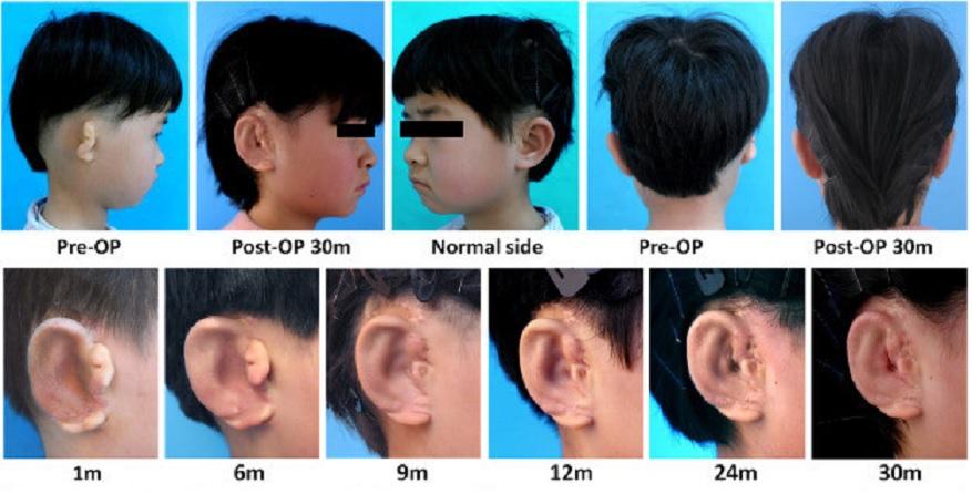 Han usado una impresora 3D para crear orejas en niños