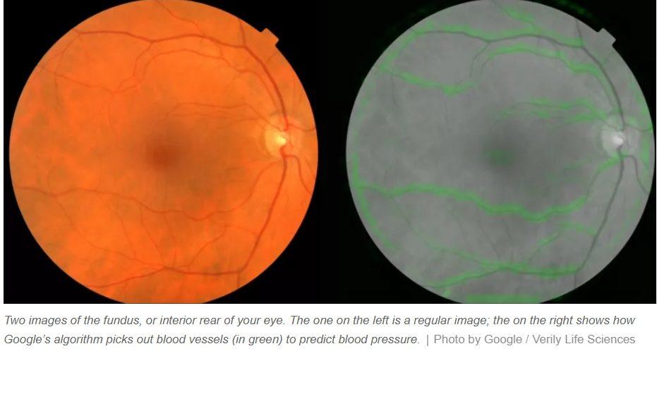 Inteligencia artificial de Google predice riesgos cardíacos mirando a los ojos