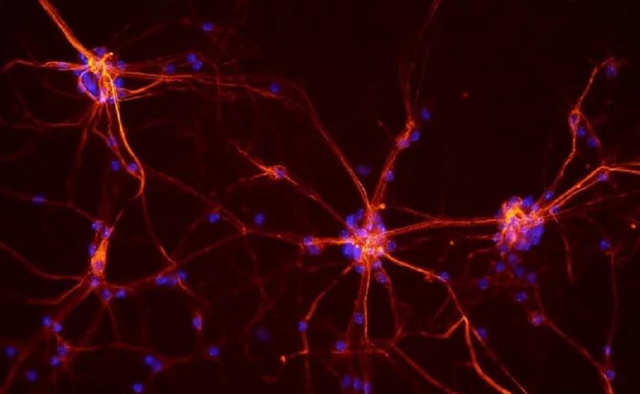 Video en tiempo real muestra cómo se reparan las neuronas tras sufrir un daño