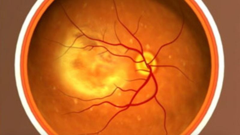 Usan células madre para restaurar la vista en dos personas con degeneración macular
