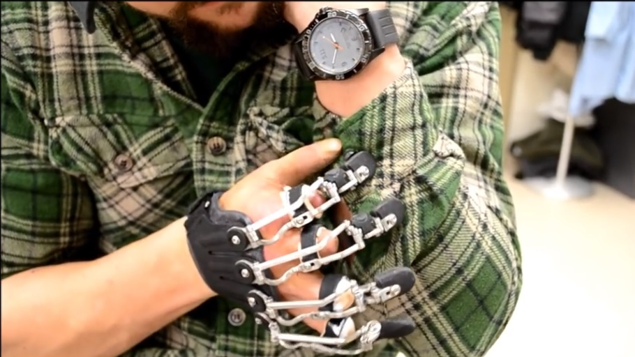 Fabrican prótesis personalizadas que funcionan con los movimientos naturales de la mano del usuario