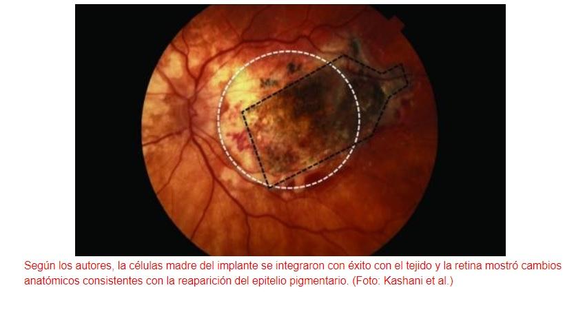 Un implante de retina frena la ceguera causada por la degeneración macular