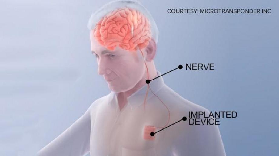 """""""Marcapasos cerebral"""" podría ayudar a pacientes con accidentes cerebrovasculares a recuperarse más rápido"""