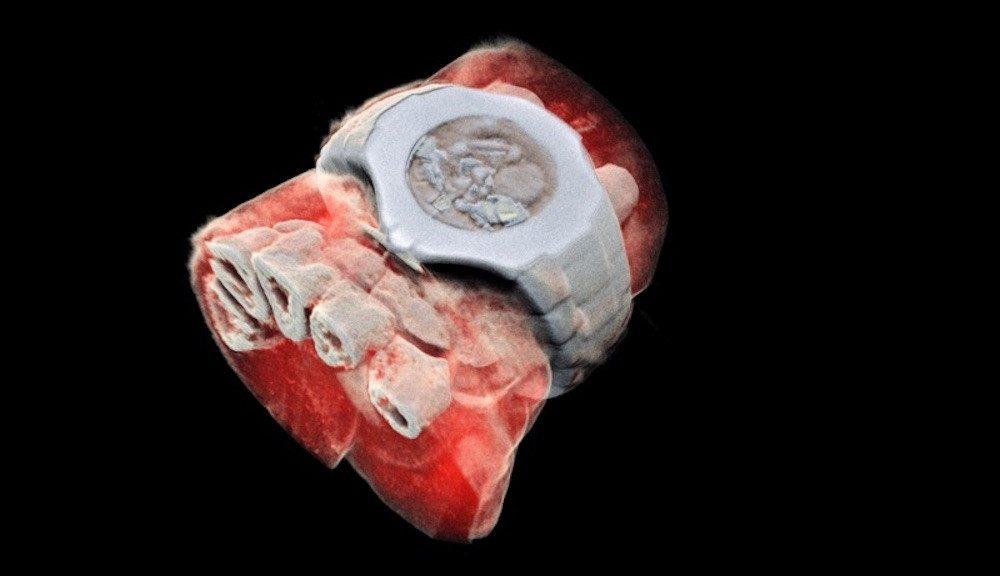 Logran las primeras radiografías tridimensionales a todo color